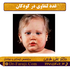 غدد لنفاوی در کودکان