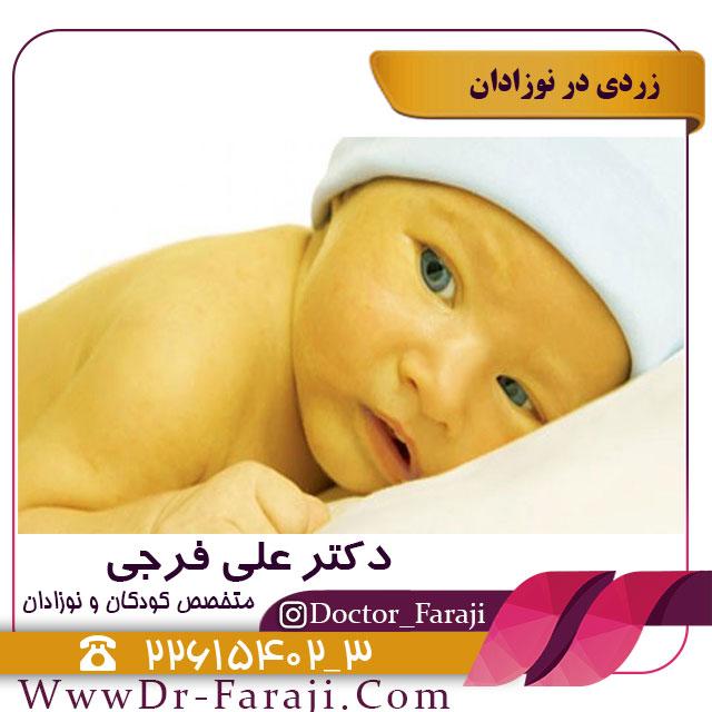 تاثیر زردی بر مغز نوزاد